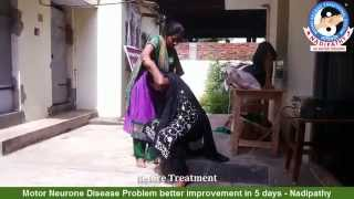 Motor Neurone Disease Problem better improvement in 5 days - Nadipathy
