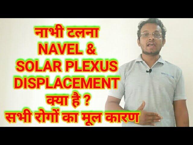 Navel Displacement/Nabhi Talna /Navel Dislocation/Nabhi Ka Digna/Solar Plexus Imbalance-PART - 1