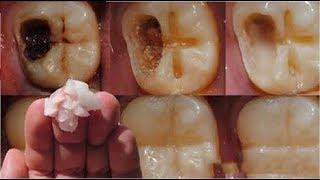 DİŞÇİYE GİTMEYİN! Diş Çürüklerini Ağrı Çekmeden Ortadan Kaldırın Sadece 5 ADIMDA