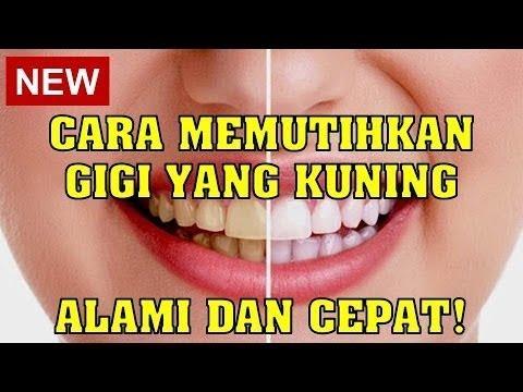 Cara Memutihkan Gigi Yang Kuning Dengan Bahan Alami Dan Cepat