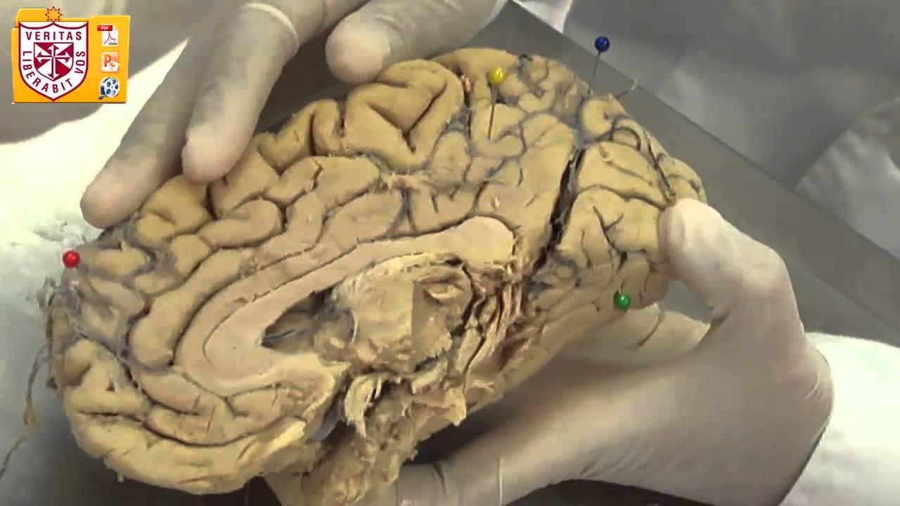 Anatomía [Lab] - Cerebro (Morfología Externa) - YouTube