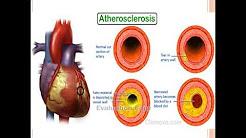 hqdefault - Screening Coronary Artery Disease Diabetes