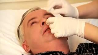 Уход за носом пациента