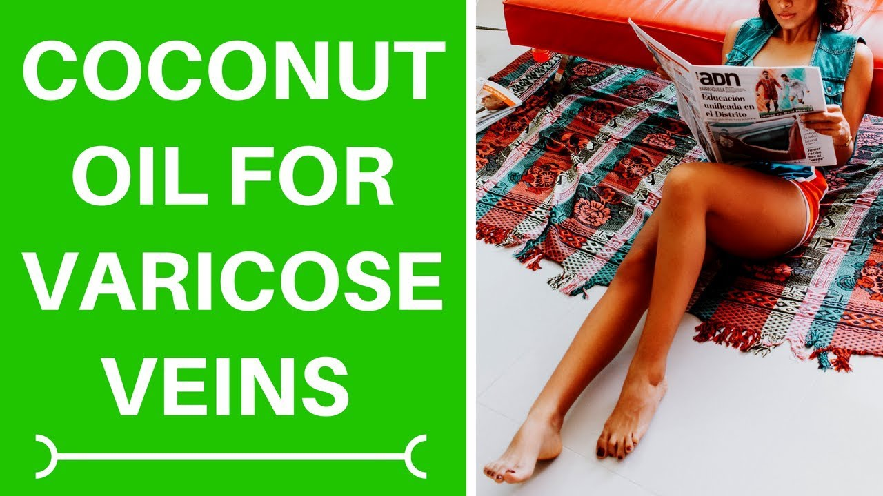 varicose veins and coconut oil