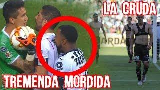 Dorlan Pabon dio Mordida en el Chivas Monterrey y Santos se cambia Durante el Partido, #LaCruda