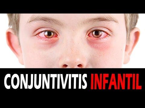 Remedios para la conjuntivitis infantil