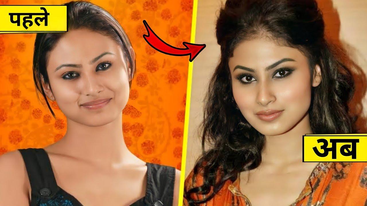 Plastic surgery के पहले और बाद की बॉलीवुड हिरोइनें | plastic surgery of bollywood actress