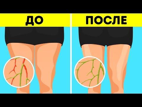 6 простых упражнений для похудения без диет