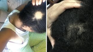 Growing Back My Bald Spot - How To Get Rid Of Bald Spots Fast! |  Natural Bald Spot Treatment