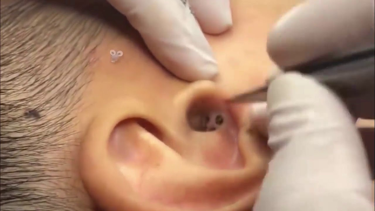 Huge colony of ear blackheads