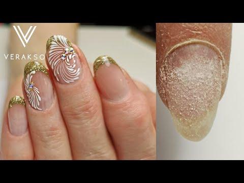 Перепилила ногтевое ложе((( Классный дизайн ногтей. Вензеля