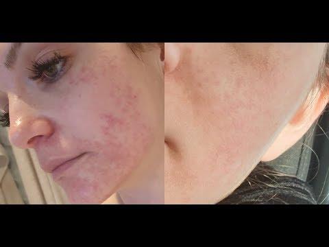 Hellobody NIE WIEDER! Hautupdate Perioale Dermatitis. Das Hat Mir Geholfen