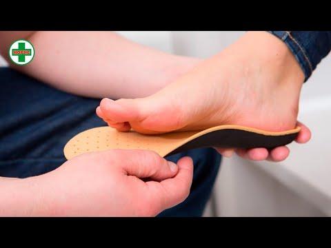 Зачем нужны индивидуальные ортопедические стельки? Как изготавливаются стельки?