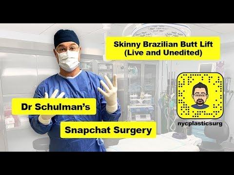 Live Plastic Surgery On Snapchat - Skinny Brazilian Butt Lift (bbl) - Matthew Schulman, M.D