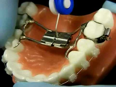 Dental metal gag spreading her mouth wide open