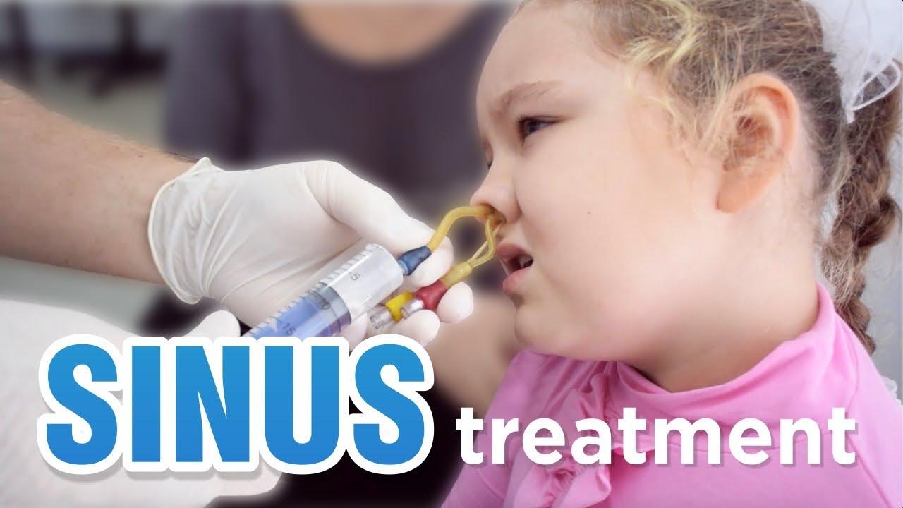 sinusitis antibiotikum kezelés