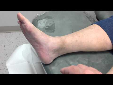 What Causes Chronic Ankle Pain? | Bloomington, IN Foot Doctor
