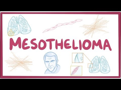 mesothelioma---an-osmosis-preview