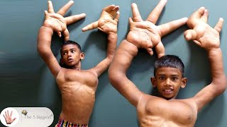 Biggest Hands in the World: Starfish Hand! Watch His Transformation! ~ Body Bizarre!