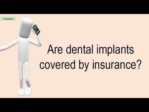 are-dental-implants-covered-by-insurance?