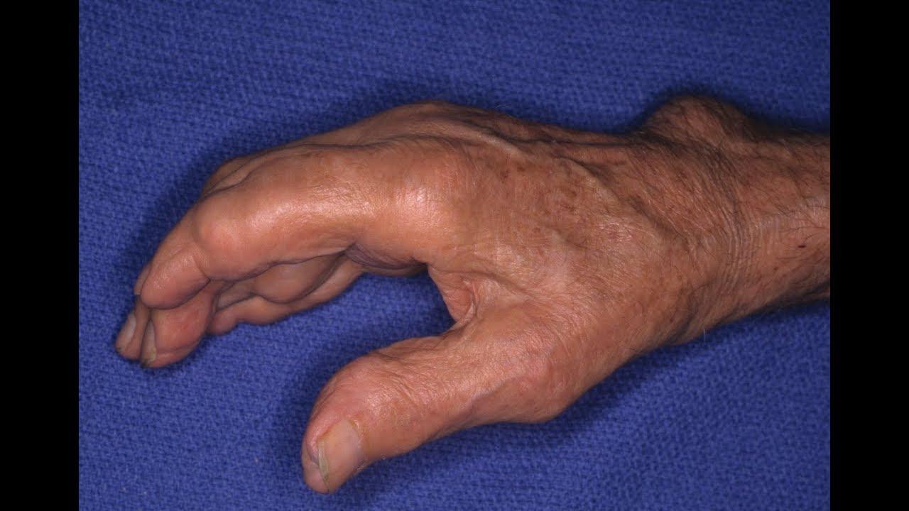 Hoàng Tiên Đan – Tiêu Tan nỗi lo bệnh gout