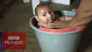 Zika: ¿Cómo es la vida del bebé con microcefalia de esta famosa foto?