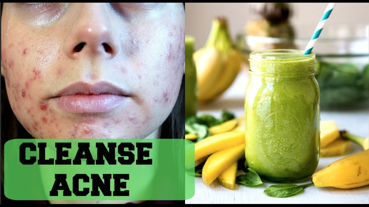 what to eat and drink to get rid of acne