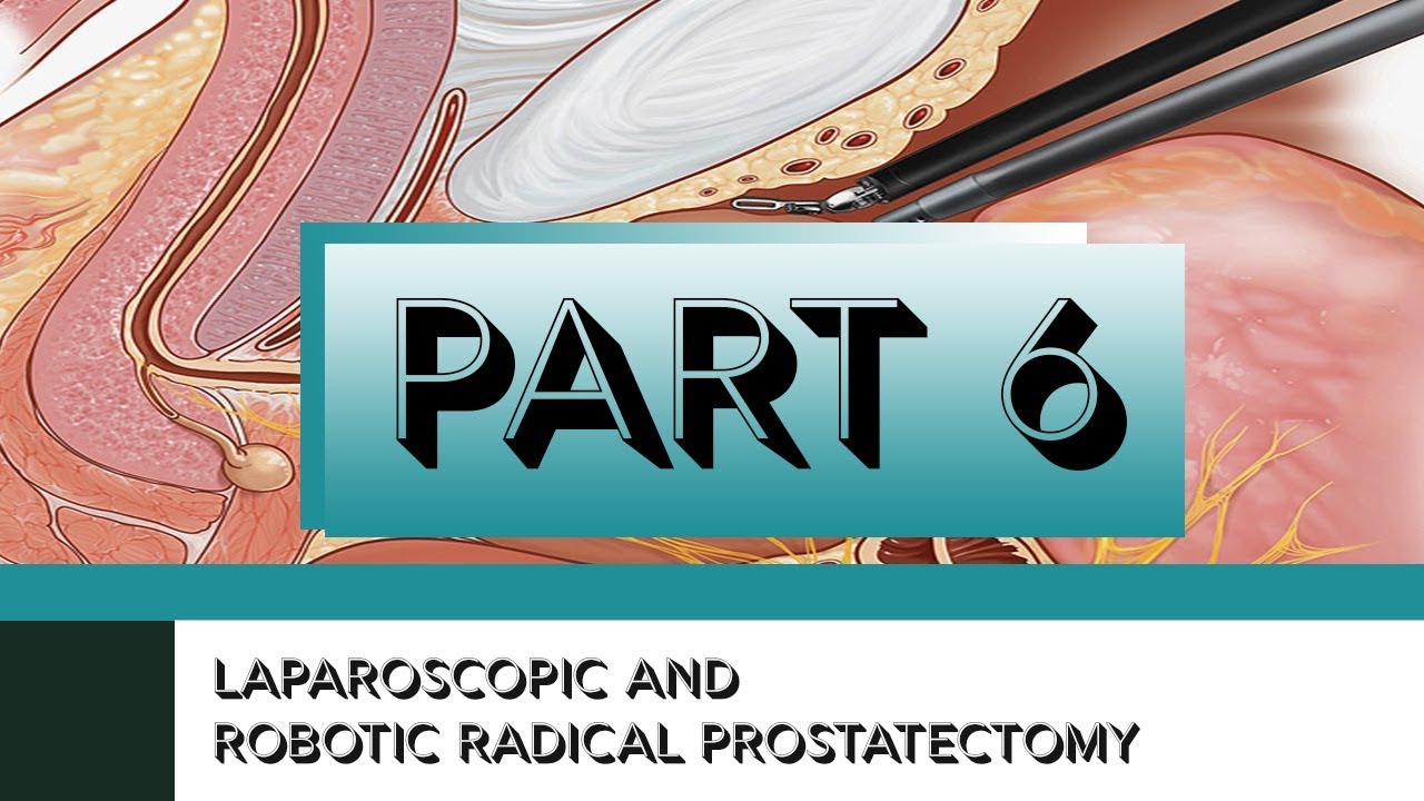 Laparoscopic And Robotic Radical Prostatectomy Part Vi
