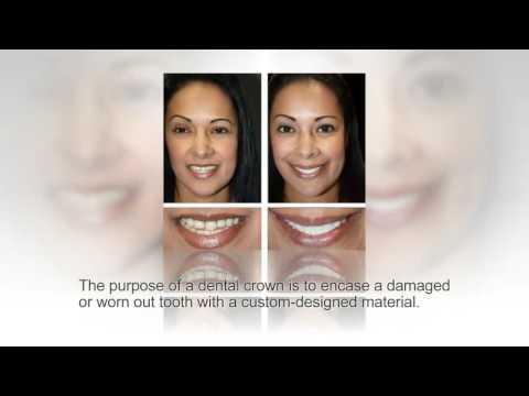 dental-crowns-replacement-at-cosmetic-dental-associates-san-antonio,-tx-dental-office