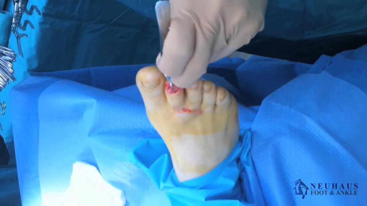 Bulto hueso dedo gordo pie
