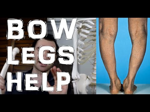 Are You Bow Legged (Genu Varum)?: Here's 2 Tips For Correcting It!