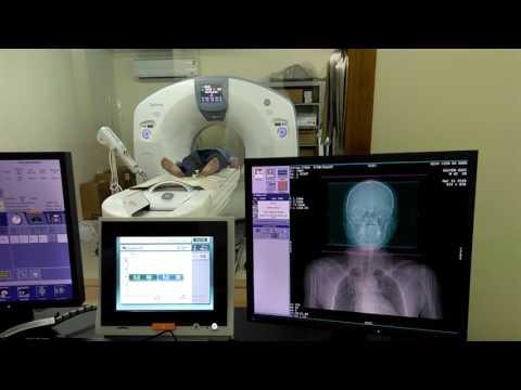 Kiến tập CT scanner 128 - mạch máu não
