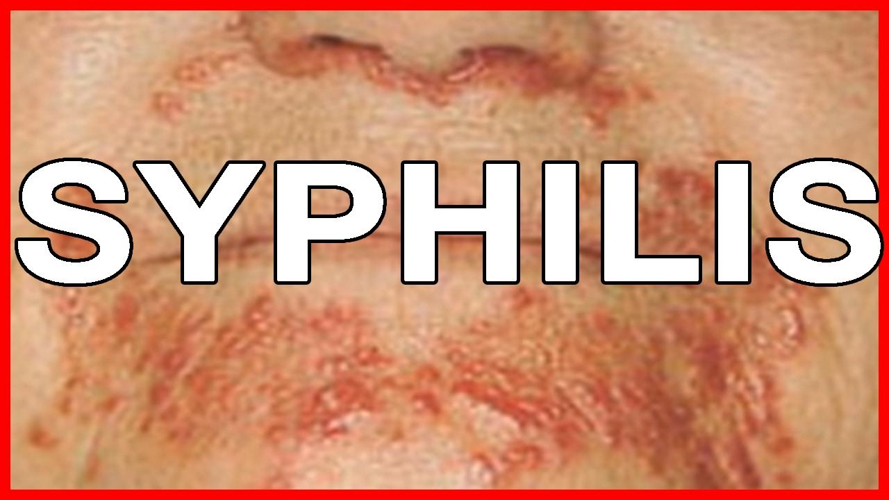 Syphilis: işaretler