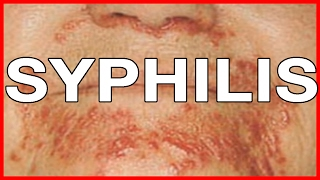 What Causes Syphilis? Symptoms and Signs, Treatment and Health Risks