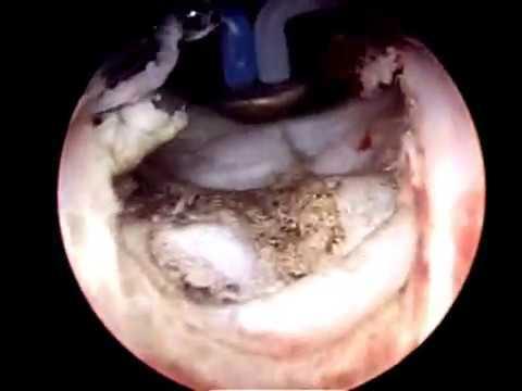 vaporizacion prostatica por plasma olympus