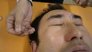 眼精疲労一発解消の鍼。美眼鍼・美顔鍼にも使います。 thumbnail