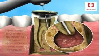 Лечение кисты зуба без операции(http://www.symptominfo.ru/theme/show/118/ Здесь Вы можете познакомиться с любой информацией по данной проблеме, а также получ..., 2016-01-25T21:45:56.000Z)