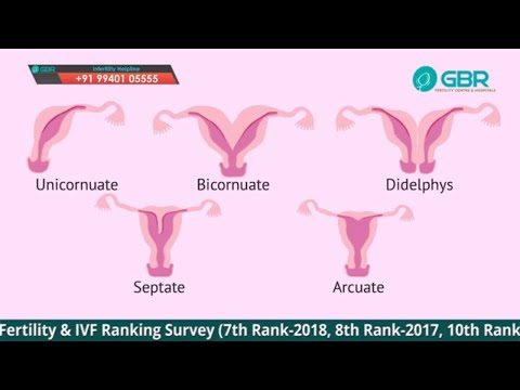 Uterine Septum Symptoms & Pregnancy   GBR Cord   DR G Buvaneswari