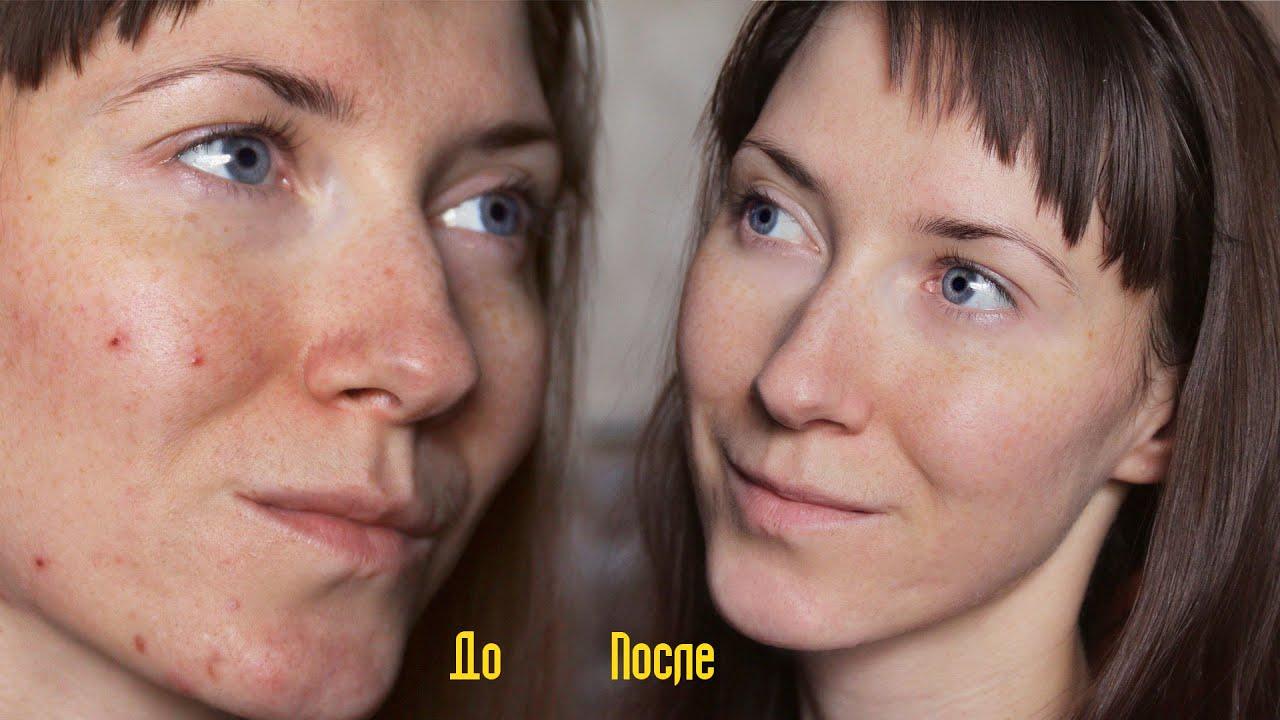 Энзимный пилинг лица