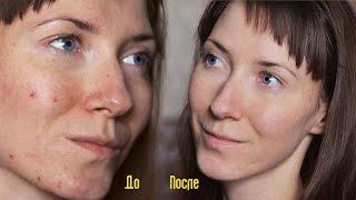 видео Косметика с кислотами для проблемной кожи: фруктовая и салициловая кислоты для лица