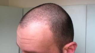 Hair Growth Experiment Using Rogaine Minoxidil 5% Day 52