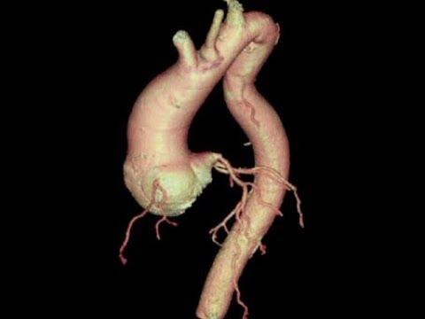 Aort Anevrizması Ameliyatı 3: Prof.Dr.İlhan Gölbaşı