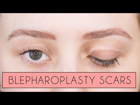 My Blepharoplasty Scars & FAQs | Cost, Pain | Eyelid Surgery
