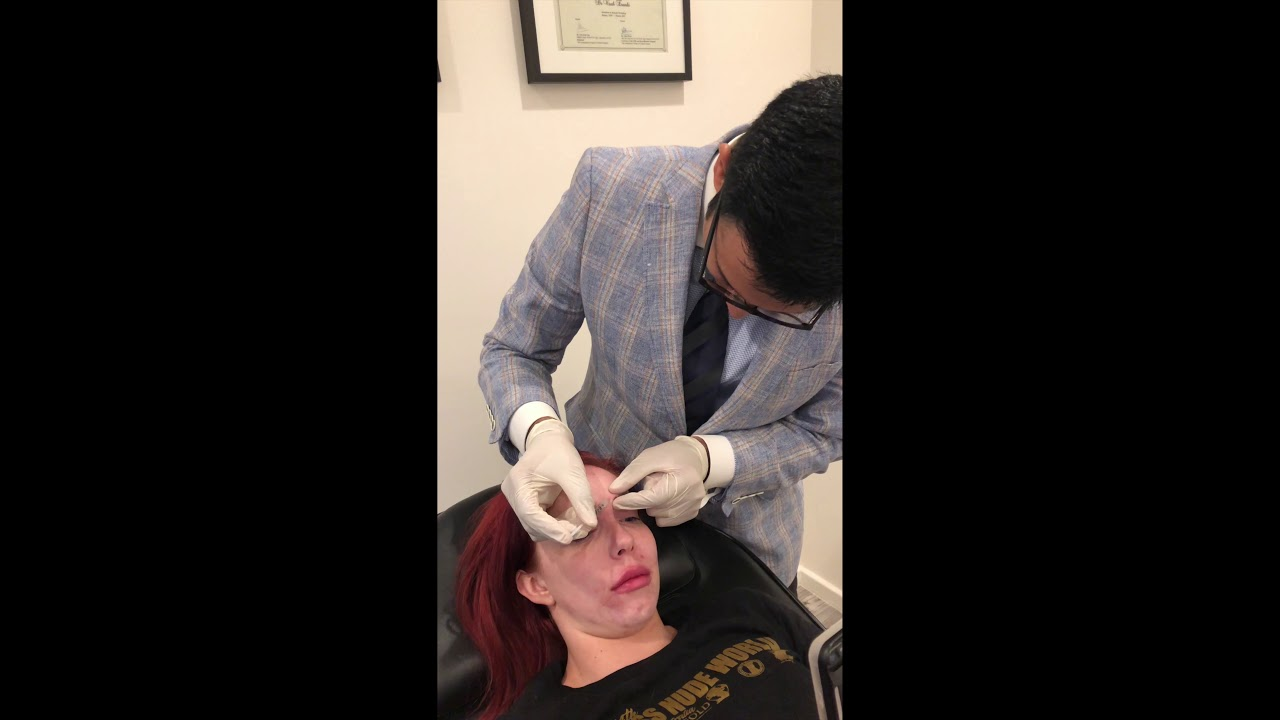 Frown Line Wrinkle Relaxers | Cosmetique Cosmetic Surgery Clinic | 1300 320  272