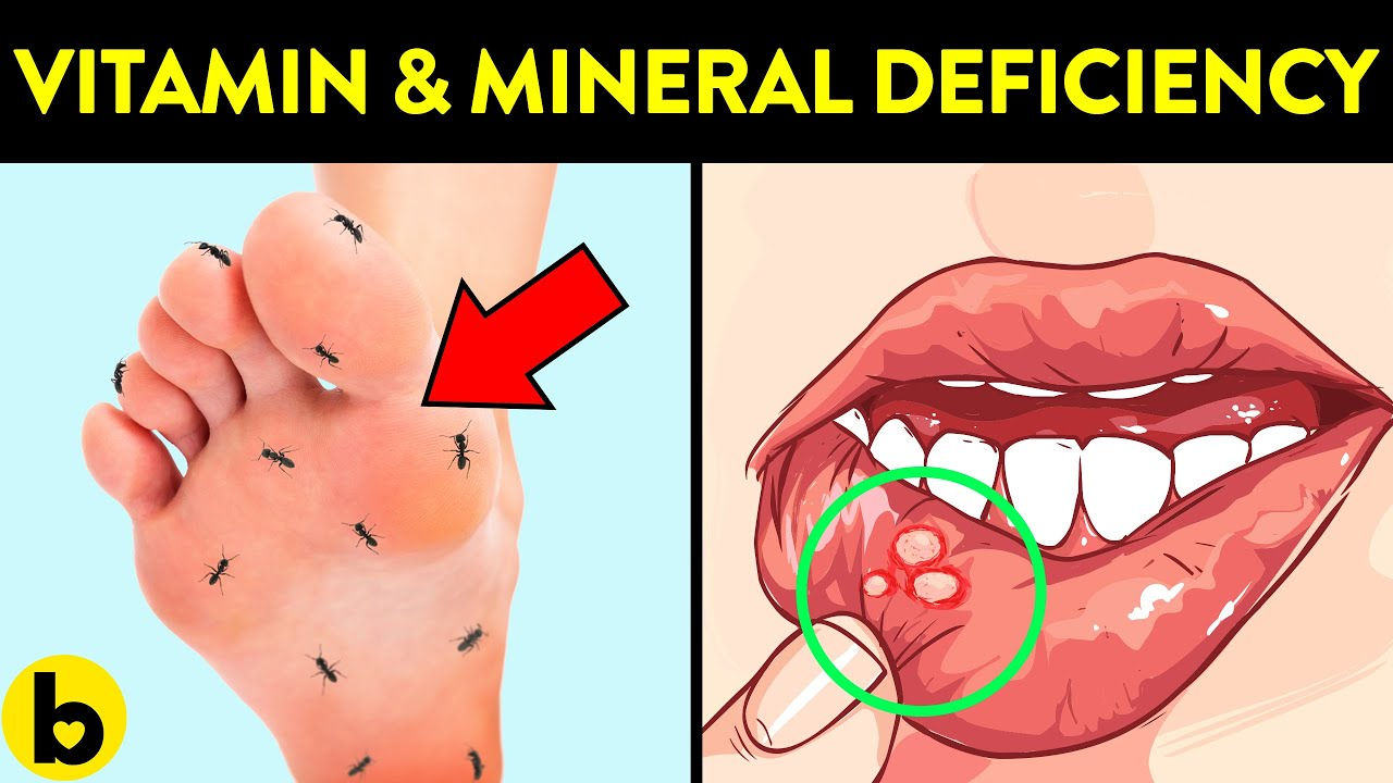 6 Signs that you may have Vitamin and Mineral Deficiency