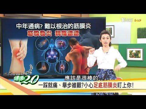 一踩就痛?改善「足底筋膜炎」這3招學快學起來!健康2.0 (完整版)