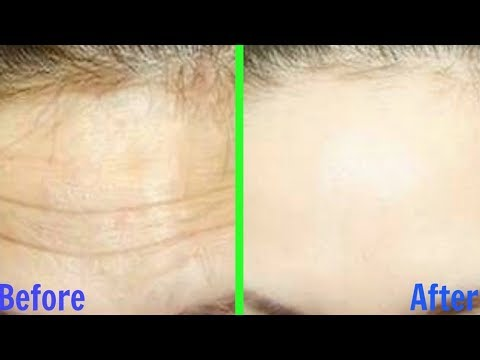How to Get Rid of Forehead Wrinkles!