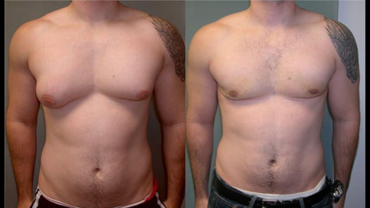 Weight loss doctors surprise az