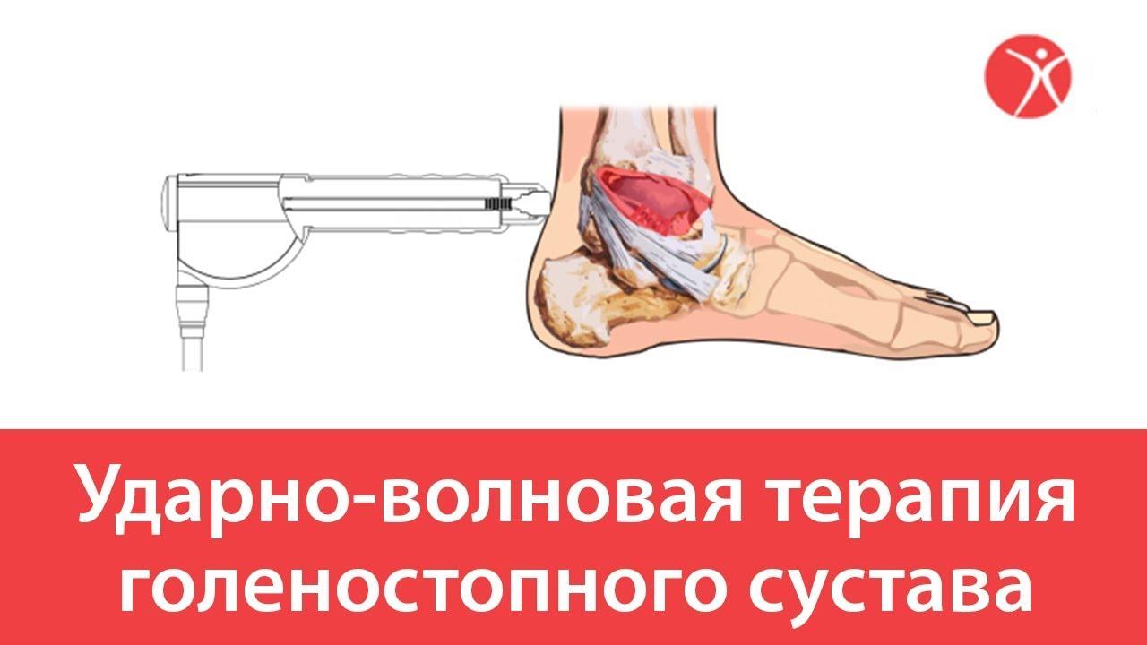 Ударно-волновая терапия голеностопного сустава