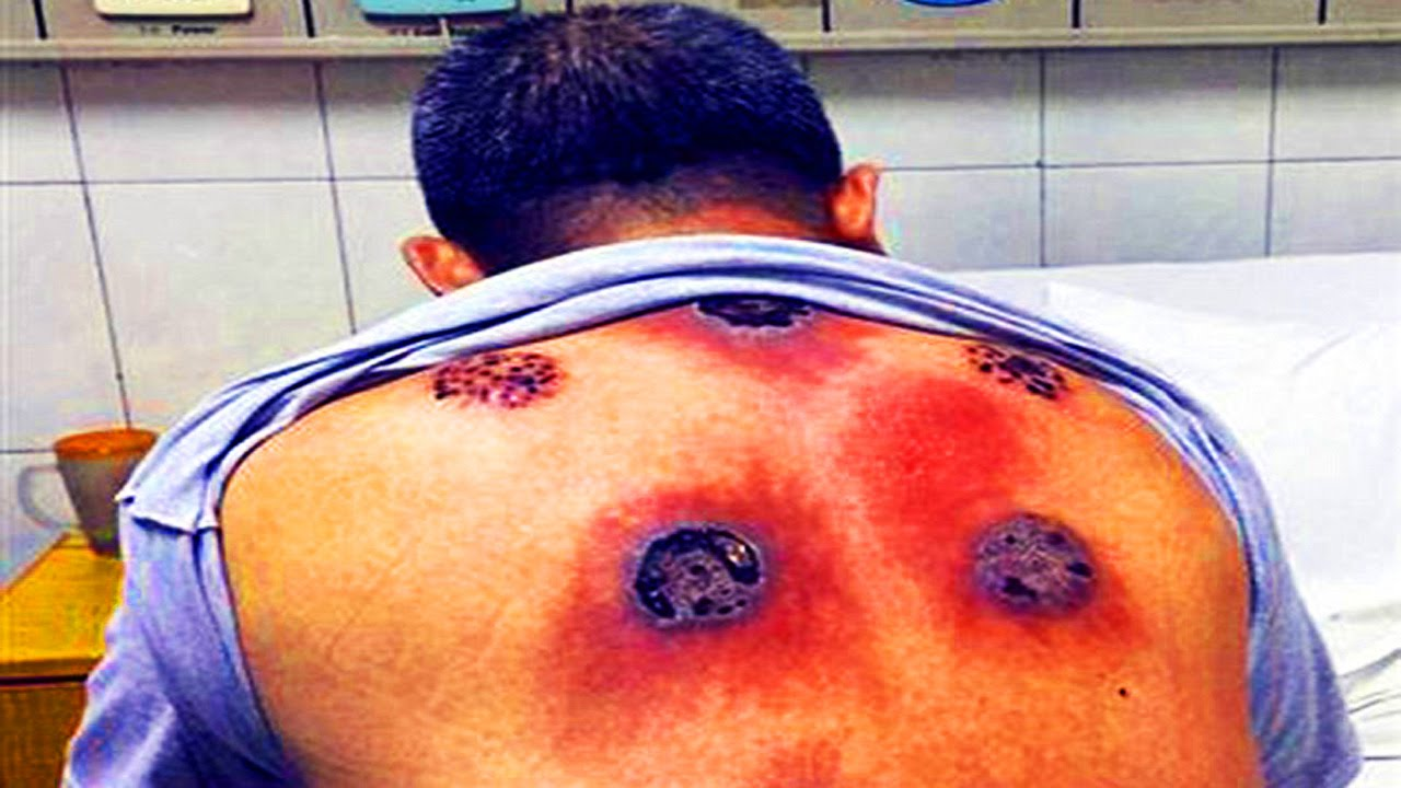 fire cupping gone wrong bacterial infection youtube
